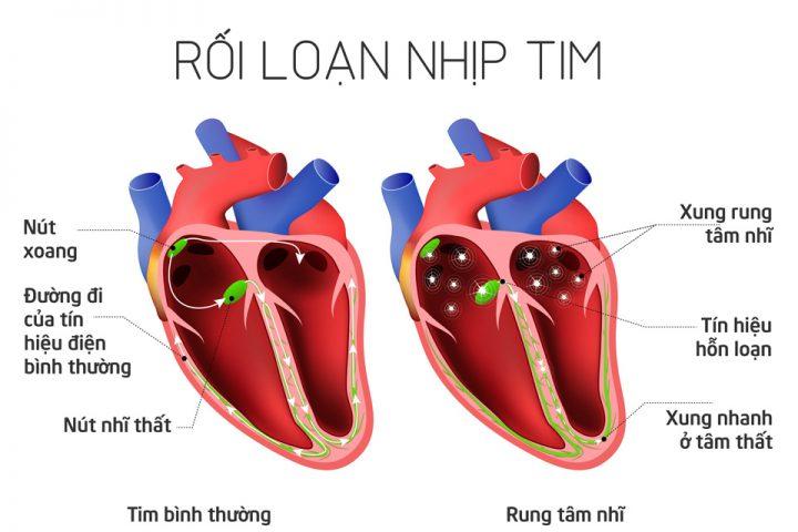 chung roi loan nhip tim va nhung dau hieu cua no 1 720x480 - Chứng rối loạn nhịp tim và những dấu hiệu của nó
