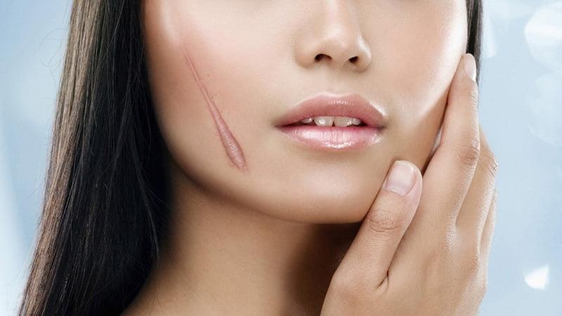 Bí quyết lấy lại làn da hoàn hảo sau khi bị sẹo 2