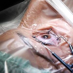 Bộ dụng cụ phẫu thuật mắt